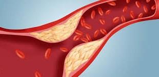 baisser le taux de cholestérol